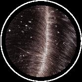 item cuero cabelludo | Nuala Beauty Store